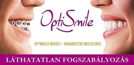 Optismile® – Láthatatlan fogszabályozás